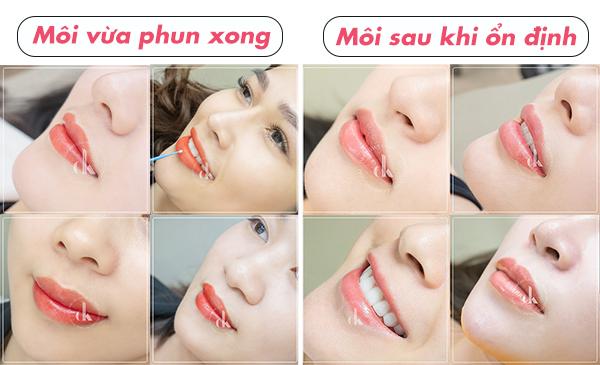 Sau phun môi cần lưu ý gì để môi lên màu đẹp