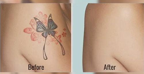 Hình ảnh trước và sau khi xóa xăm bằng laser