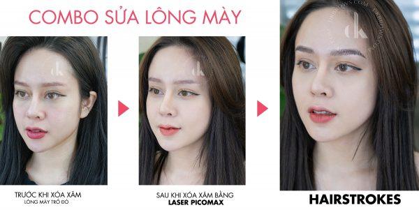 Combo sửa lông mày trổ đỏ: Laser Picomax & Hairstrokes