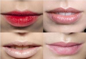 Hình ảnh các vấn đề thường gặp sau khi phun môi 4