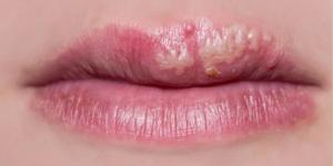 Hình ảnh các vấn đề thường gặp sau khi phun môi 5