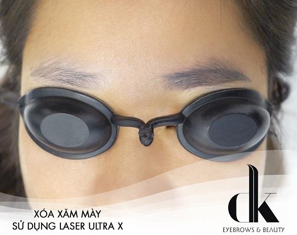 Xóa xăm lông mày bằng công nghệ laser Ultra X